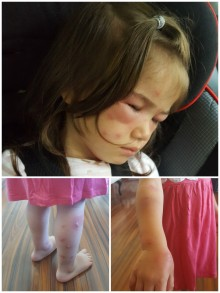 mosquito-bites-on-toddler
